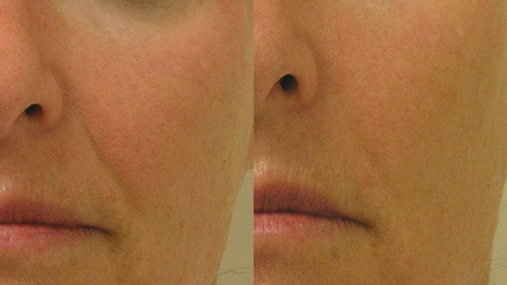 hydrafacial-before-after-4